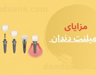 فواید و مزایای ایمپلنت دندان