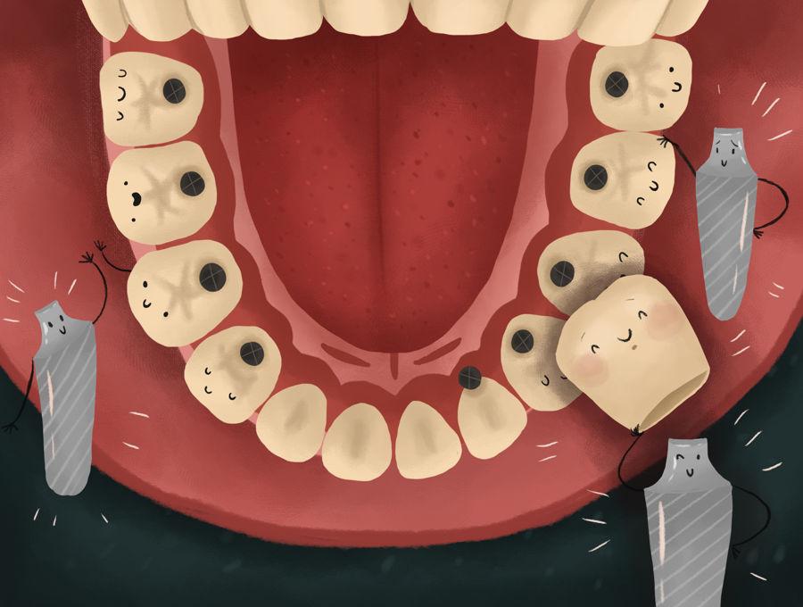 ایمپلنت دندان ها