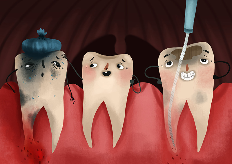 درمان ریشه دندان یا روت کانال
