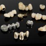 قیمت و هزینه روکش دندان در سال 99