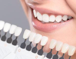 فرق کامپوزیت و لمینت دندان