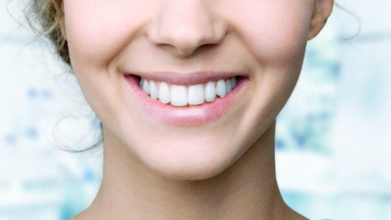 مراقبت از ونیر دندان