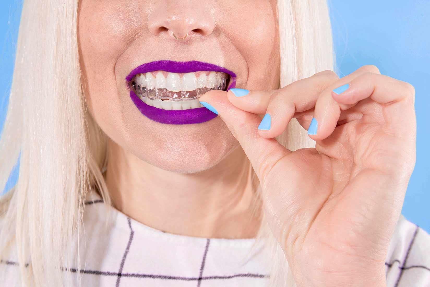 ارتودنسی نامرئی چیست؟ سایت دندانپزشکی دندانه