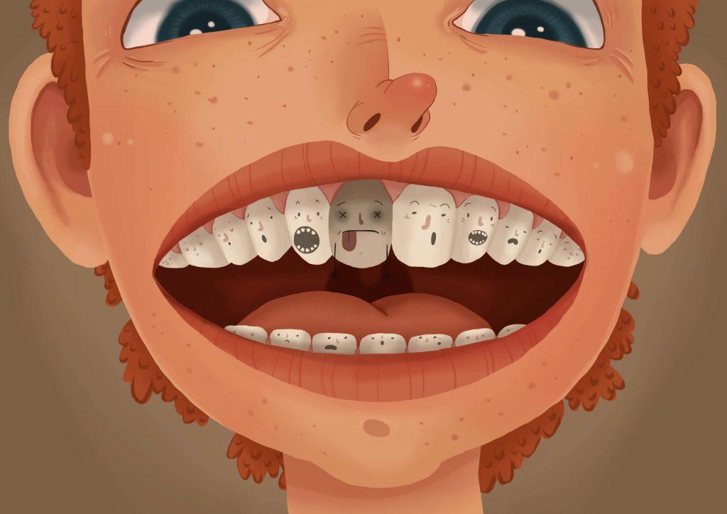 دندان مرده