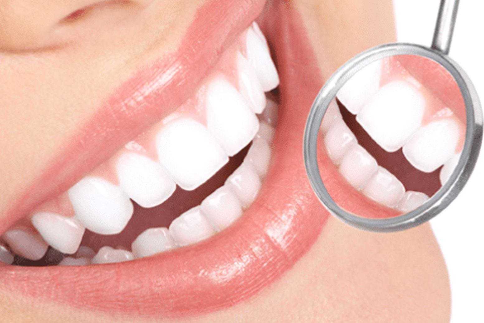 فواید دندانپزشکی زیبایی