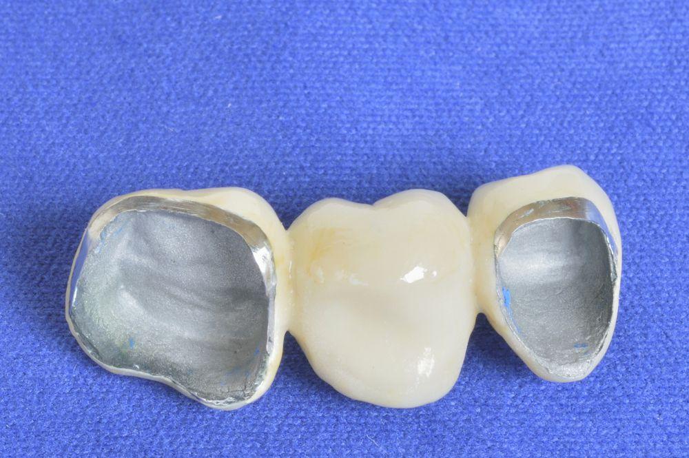 هزینه روکش دندان پی ام اف