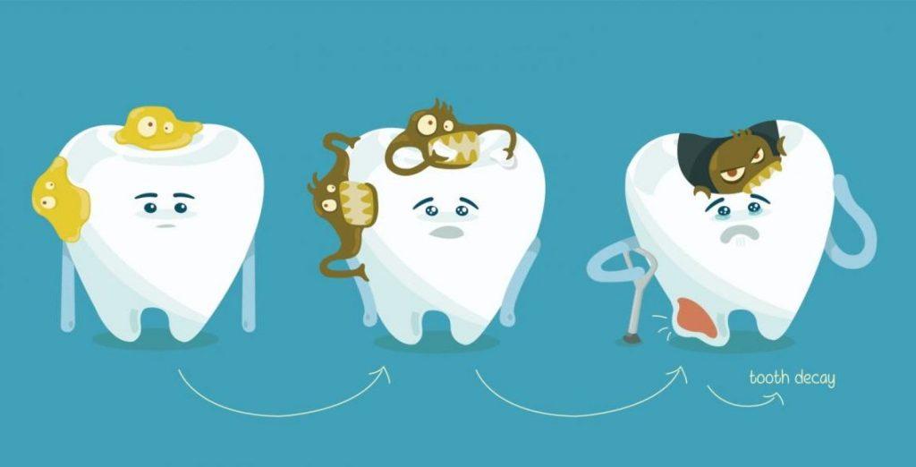 علائم پوسیدگی دندان