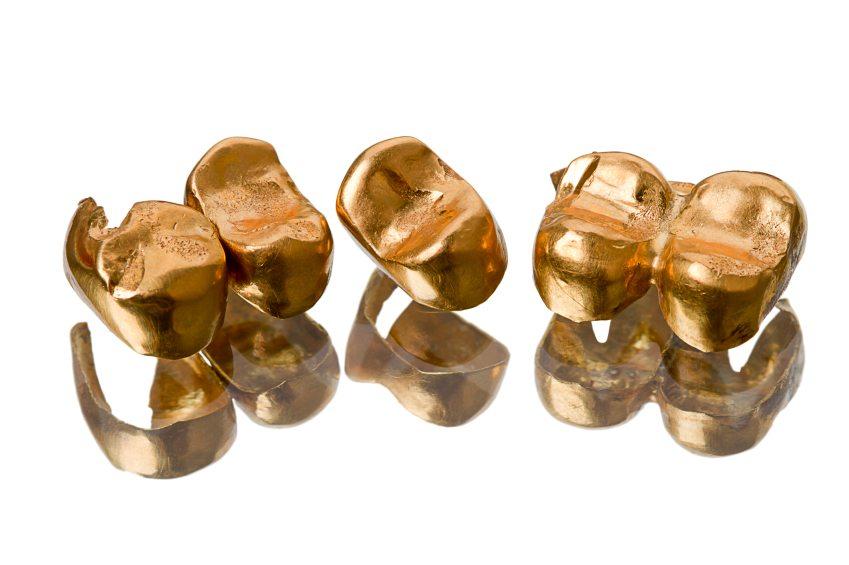 هزینه روکش دندان طلا (یک عدد روکش ساخته شده از جنس زیرکونیا)