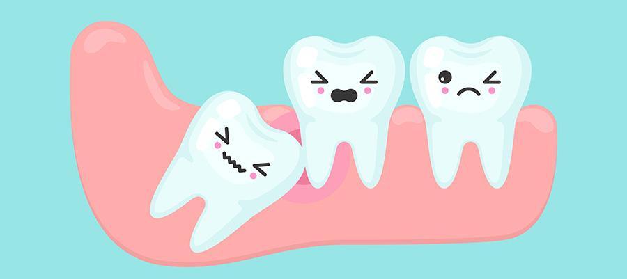 دندان نهفته