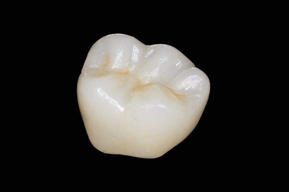 هزینه روکش دندان زیرکونیا (یک عدد روکش ساخته شده از جنس زیرکونیا)