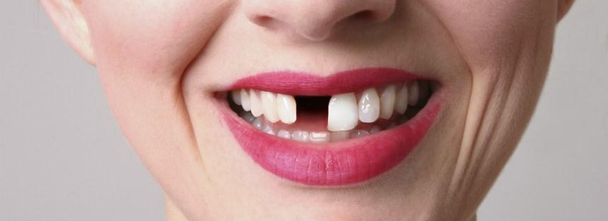 از دست دادن دندان و خانمی که به خاطر آن نیاز به دندان مصنوعی دارد