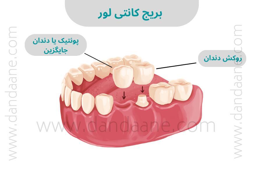قیمت بریج دندان در سال 1400 (قیمت بریج کانتی لور)