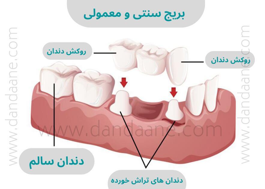 قیمت بریج دندان در سال 1400