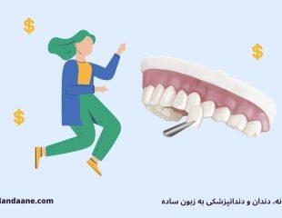 هزینه لمینت دندان در سال 99