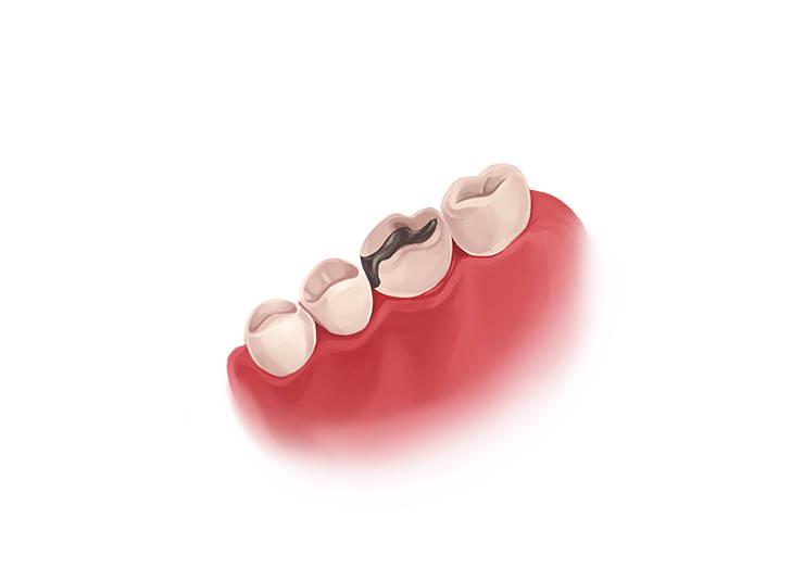پر کردن دندان با آمالگام