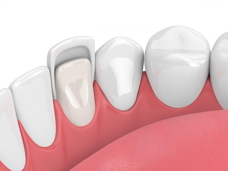 تصویر یک عدد لمینت دندان از نمای داخل دهان