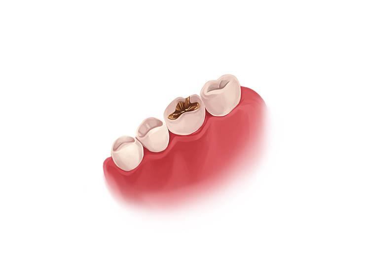 پر کردن دندان با طلا - پرکردگی طلا