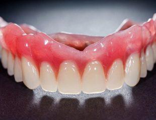 نیاز به دندان مصنوعی