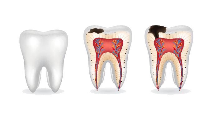 تصویر سه عدد دندان که روند پوسیدگی و در نهایت پالپیت دندان را نشان میدهد. پالپیت یکی از علل درد دندان پر شده است