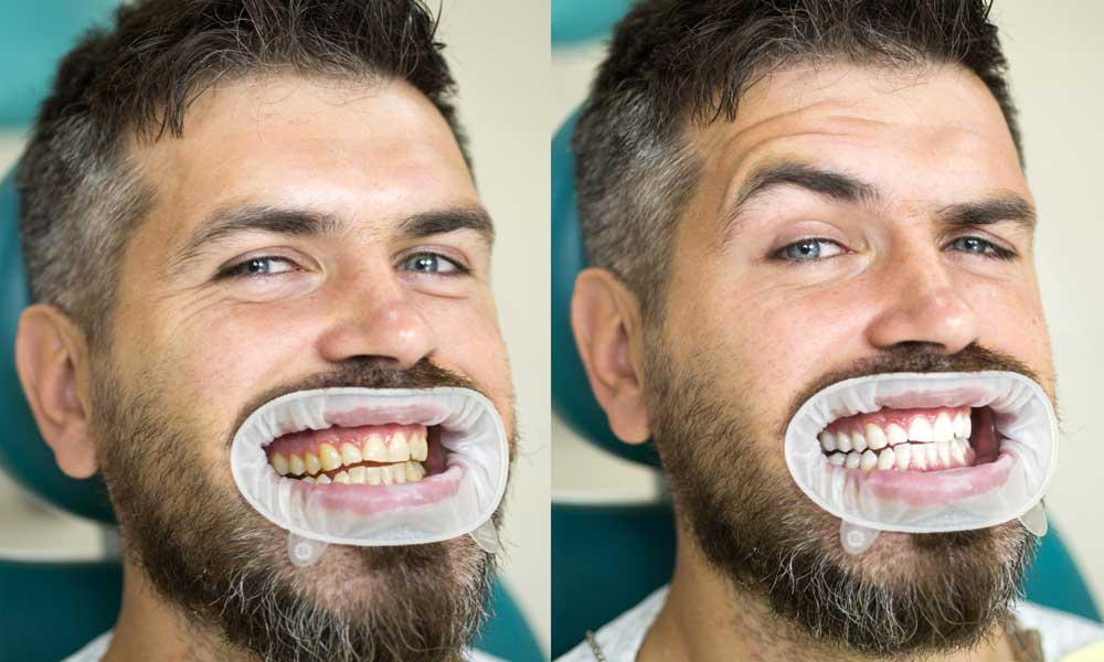 عکس-بلیچینگ-دندان