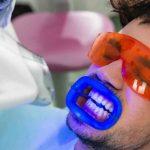 قیمت و هزینه بلیچینگ دندان در سال 1400