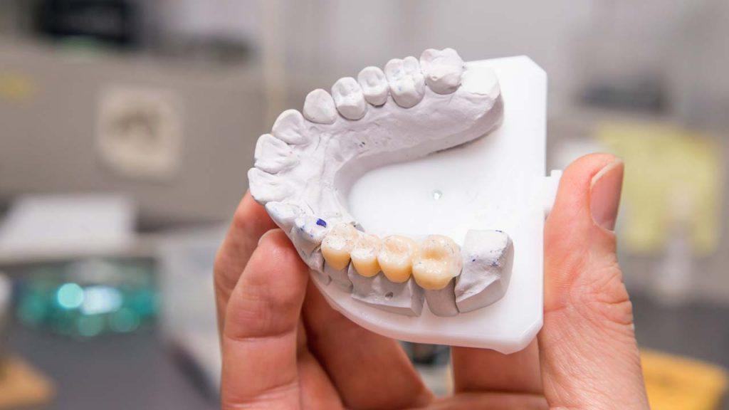 انواع بریج دندانپزشکی + قیمت آن ها