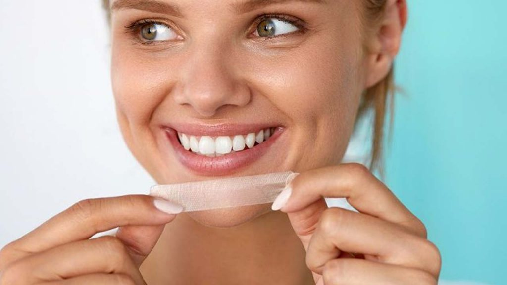 هزینه سفید کردن دندان با چسب سفید کننده