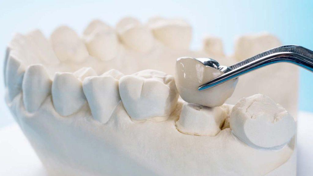 هزینه روکش دندان 1400
