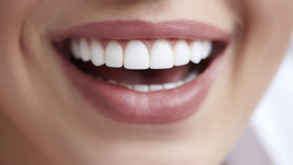 هزینه و قیمت کامپوزیت دندان